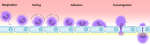 免疫細胞の浸潤